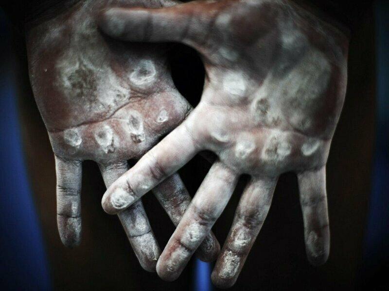 Руки гимнастов