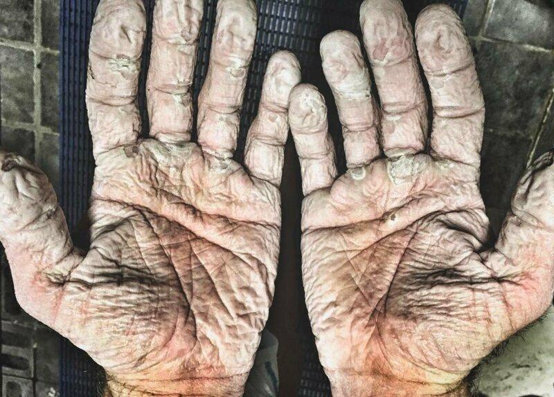 Ладони гребца после месяца практически непрерывной гребли в мокрых перчатках конечности. руки, ноги. сила воли, спорт, спортсмены, цена победы