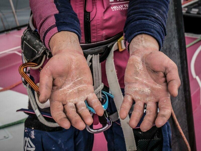 Цена победы: 20 фото конечностей спортсменов,  которые шокируют вас