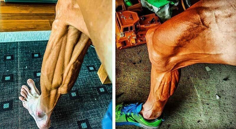 Велосипедист, борющийся с булимией, шокировал фотографией своих ног