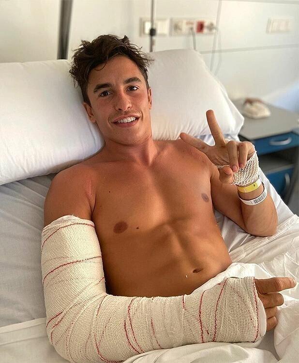 Мотогонщик через три дня после перелома поучаствовал в гонке и пожалел об этом
