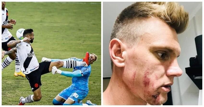 "Голкипер вместо мяча ""поймал"" жестокий удар бутсой на чемпионате Бразилии"
