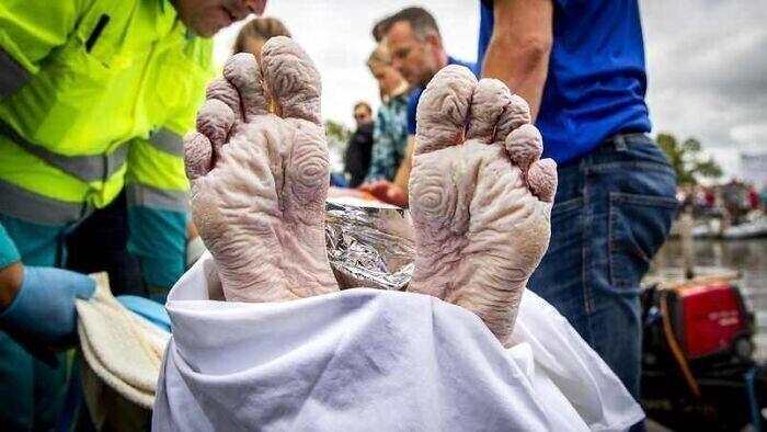 Ноги голландского олимпийского чемпиона по плаванию Маартина ван дер Вейдена после 55-часового благотворительного заплыва на 163 километра для сбора средств на исследования способов лечения рака