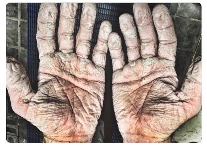 Руки спортсмена-гребца после олимпийской гонки