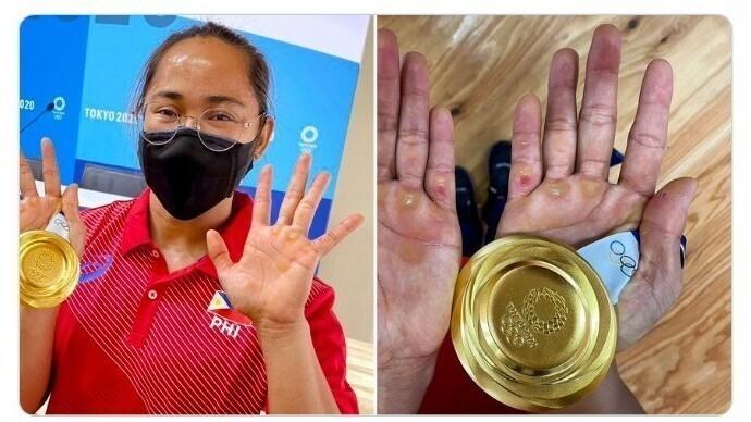 Руки штангистки Хиделин Диаз - первой золотой медалистки филиппинской сборной. По словам Диаз, это пустяки - травм, которые не видны, у нее гораздо больше
