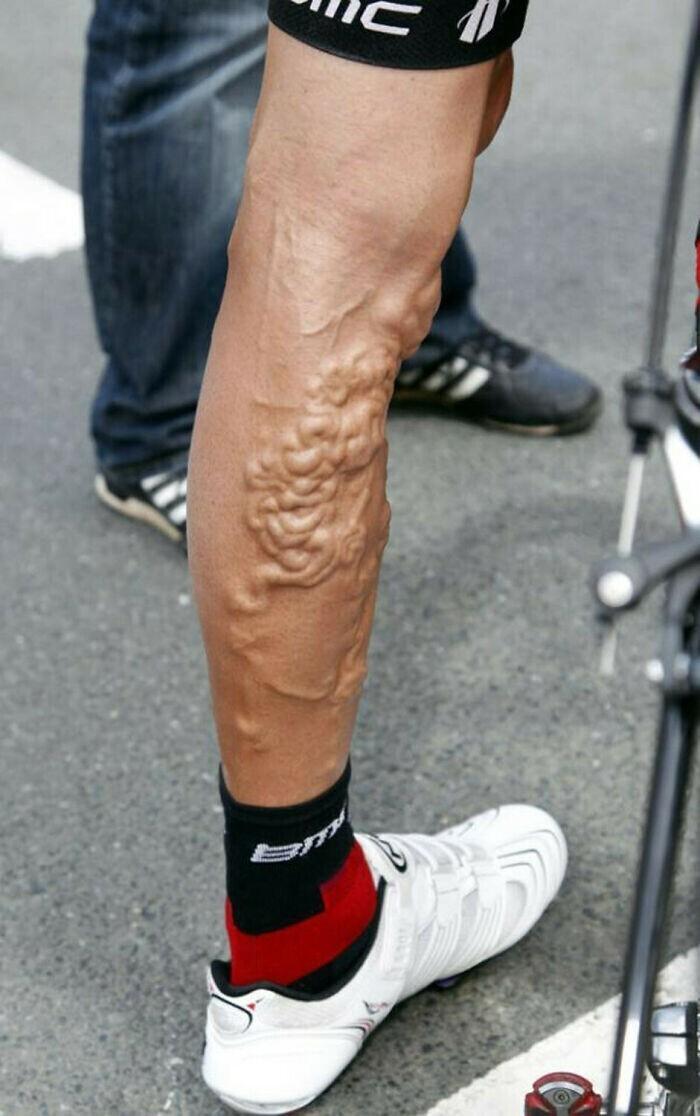 "Нога велосипедиста Джорджа Хинкапи после ""Тур де Франс"""