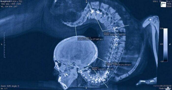 Рентгеновский снимок гимнастки во время выполнения упражнения
