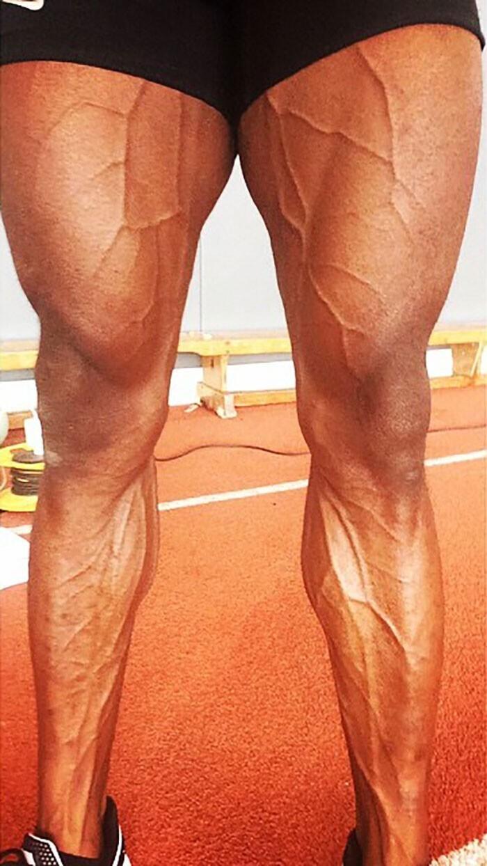 Ноги легкоатлета после предолимпийской тренировки